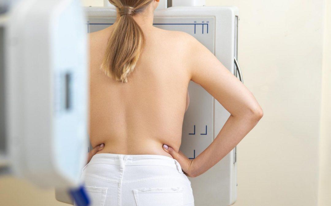 25 ans, 50 ans…Se faire dépister du cancer du sein : tout savoir !