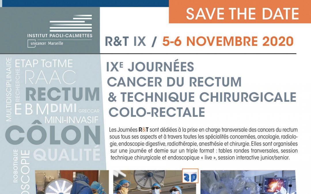 5-6 novembre 2020 : IXe Journées cancer du rectum & technique chirurgicale colo-rectale [100% distanciel]