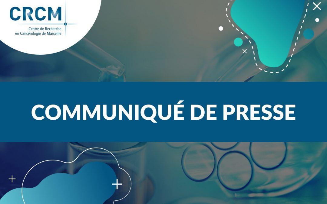 Les premiers résultats de l'essai clinique CeGAL : une approche prometteuse dans la leucémie aiguë myéloïde (LAM)